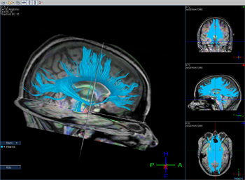TI tractography shows white matter fibers (blue) found to be affected by heading.