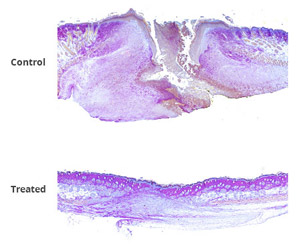 Mouse skin was burned and treated with either a standard burn treatment or new wound-healing therapy. After two weeks, cross sections of burned skin show control skin (top image) had clearly not healed, with no hair follicles, sebaceous glands or other higher order structures present in the burn area. Burns treated with therapeutic gel (bottom image) showed progressive healing and tissue regeneration, including new hair follicles.