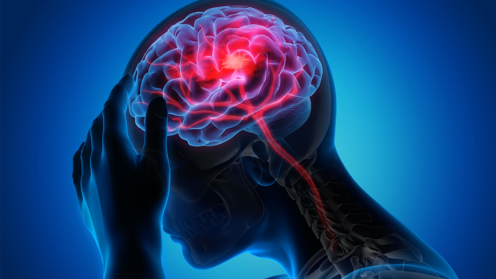 Stroke and Altered Mental State Increase Risk of Death for COVID-19 Patients