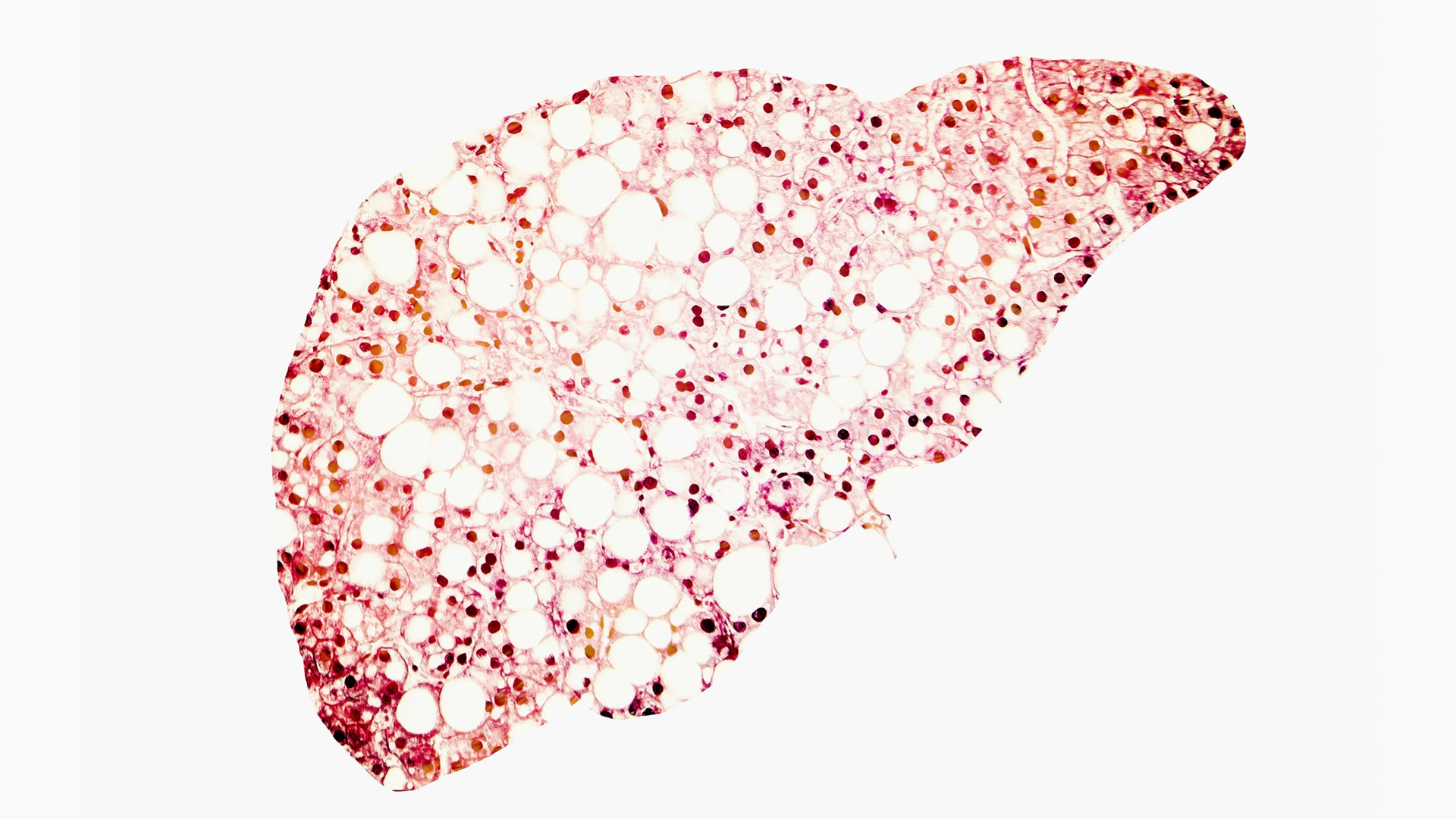 Preventing Liver Disease