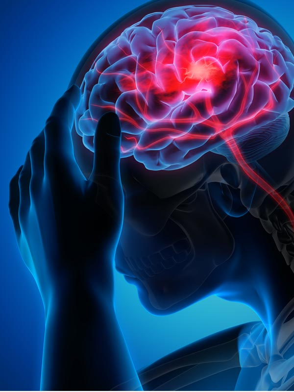 Stroke Increases Risk of Death for COVID-19 Patients