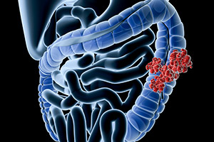 Defeating Colorectal Cancer